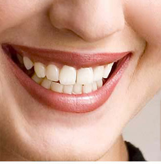 The most harmless and safe teeth whitening